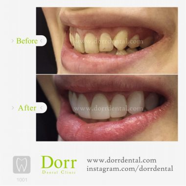 1001-tooth-reconstruction-dental-restoration-before-after