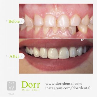 1002-tooth-reconstruction-dental-restoration-before-after