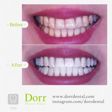 1006-tooth-reconstruction-dental-restoration-before-after