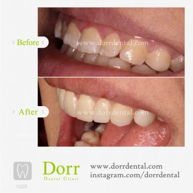 1009-tooth-reconstruction-dental-restoration-before-after