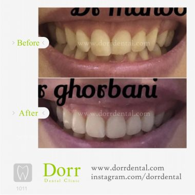 1011-tooth-reconstruction-dental-restoration-before-after