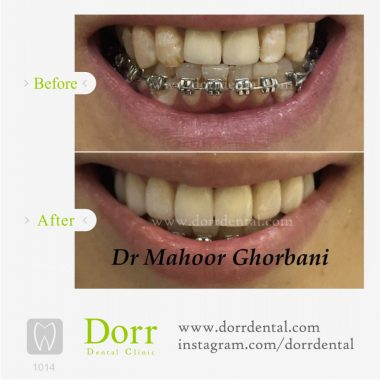 1014-tooth-reconstruction-dental-restoration-before-after