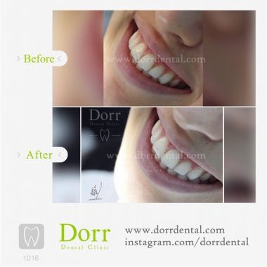 1016-tooth-reconstruction-dental-restoration-before-after