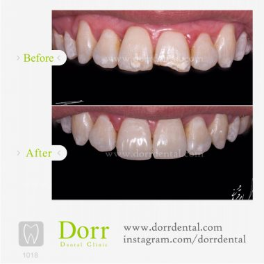 1018-tooth-reconstruction-dental-restoration-before-after