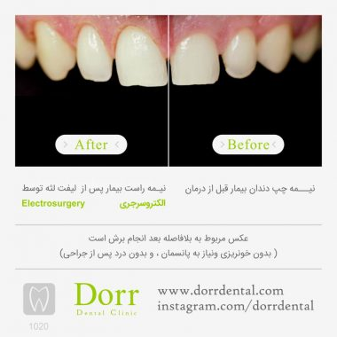 1020-tooth-reconstruction-dental-restoration-before-after