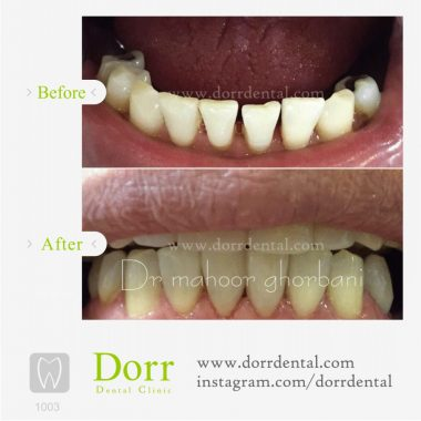 1003-tooth-reconstruction-dental-restoration-before-after