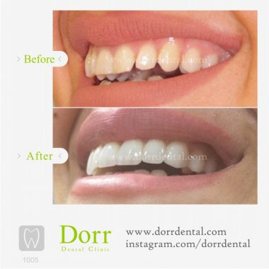 ۱۰۰۵-tooth-reconstruction-dental-restoration-before-after