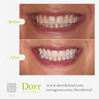 1007-tooth-reconstruction-dental-restoration-before-after