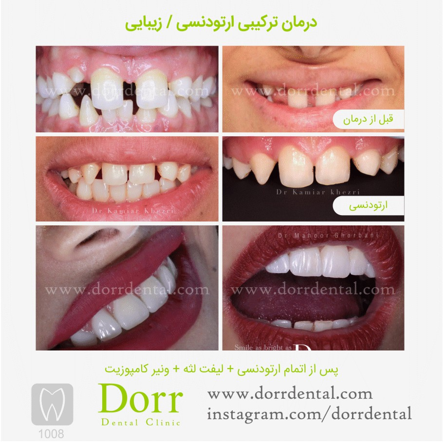 ۱۰۰۸-tooth-reconstruction-dental-restoration-before-after
