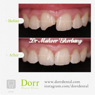 1010-tooth-reconstruction-dental-restoration-before-after