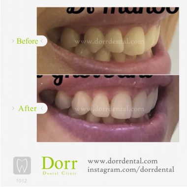 1012-tooth-reconstruction-dental-restoration-before-after