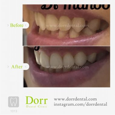 ۱۰۱۳-tooth-reconstruction-dental-restoration-before-after