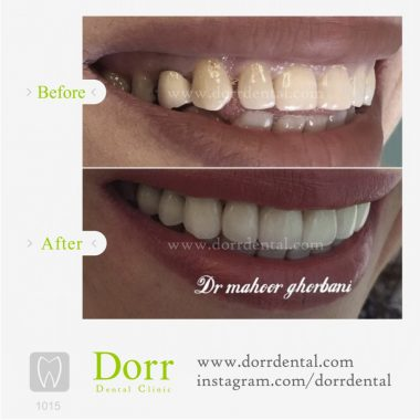 ۱۰۱۵-tooth-reconstruction-dental-restoration-before-after