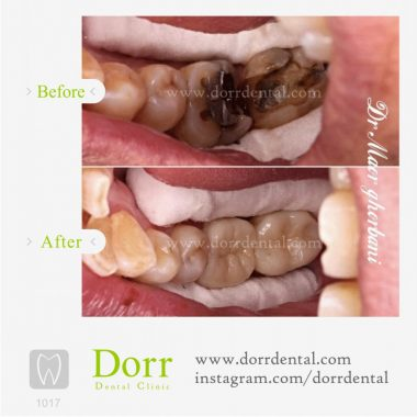 1017-tooth-reconstruction-dental-restoration-before-after