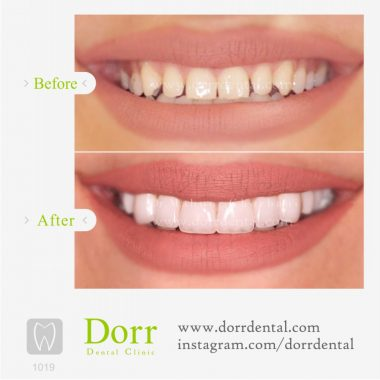 ۱۰۱۹-tooth-reconstruction-dental-restoration-before-after