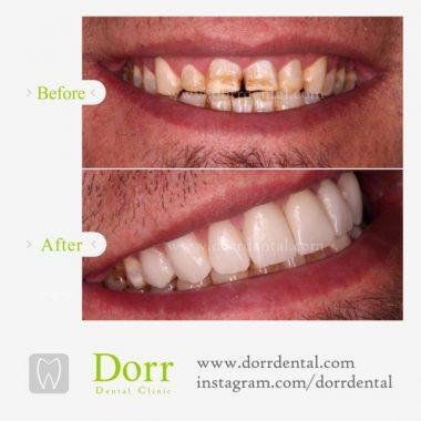 تصویر ترمیم و زیبایی دندان