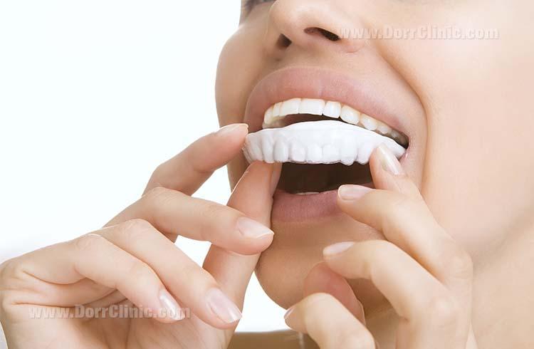 قالب های سفید کننده دندان