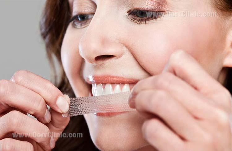 نوار سفید کننده دندان