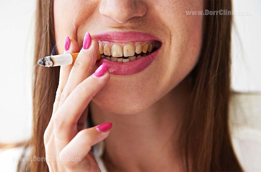 پوسیدگی دندان ناشی از استعمال دخانیات
