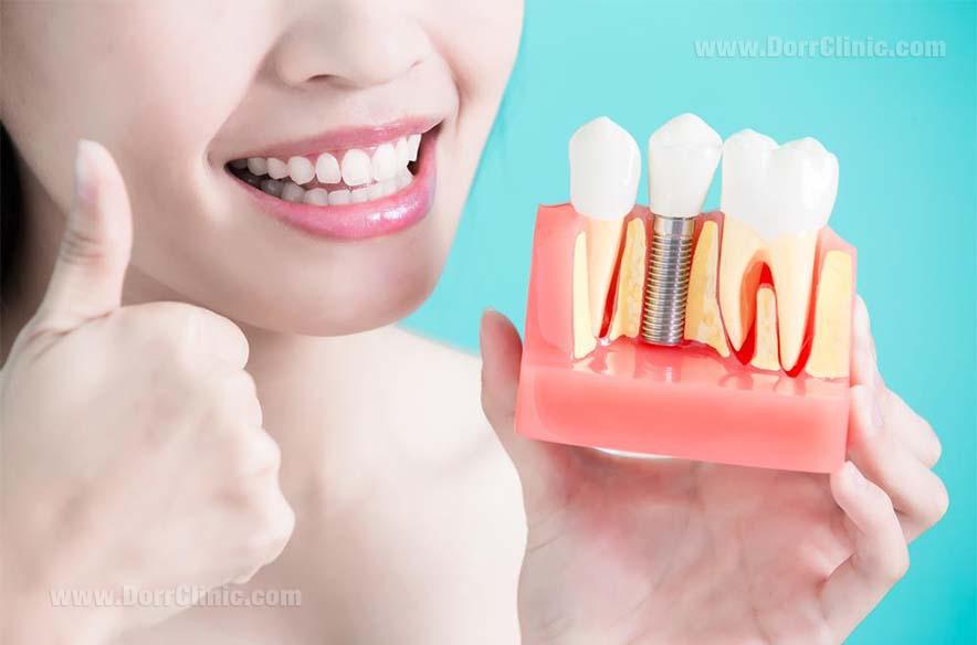 زیبایی و ترمیم دندان (ایمپلنت)