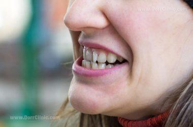 علت کج شدن دندان