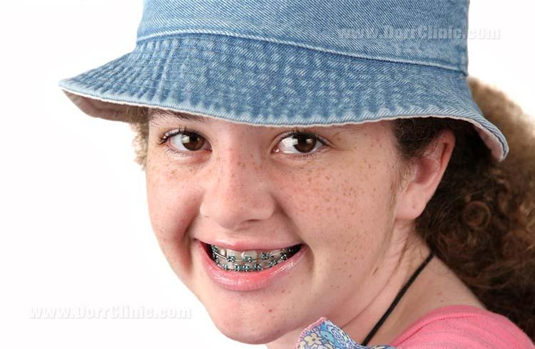 wearing braces during childhood