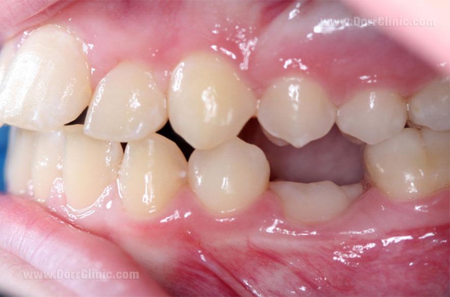 کوتاه تر بودن دندان فک جوش یا انکیلوز شده