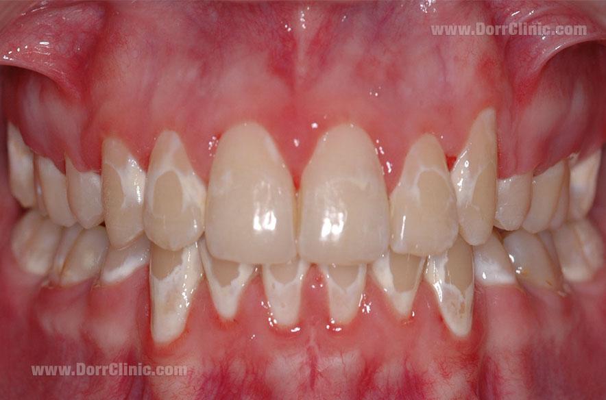 آسیب به مینای دندان