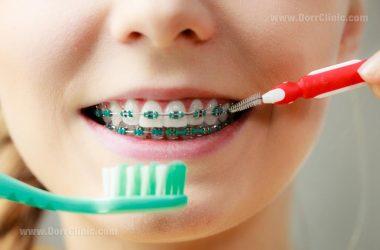 بهداشت دندان ارتودنسی