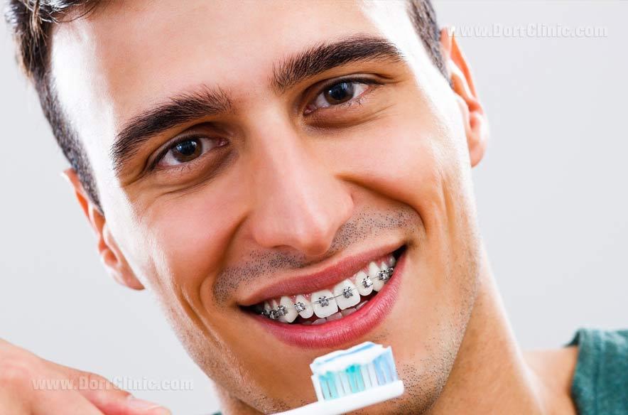 مراقبت از دندان ها پس از ارتودنسی