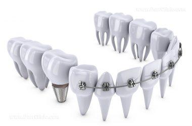 ارتودنسی دندان های ایمپلنت شده