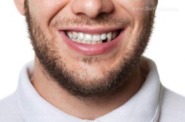 جای خالی دندان را چطور پر کنیم؟