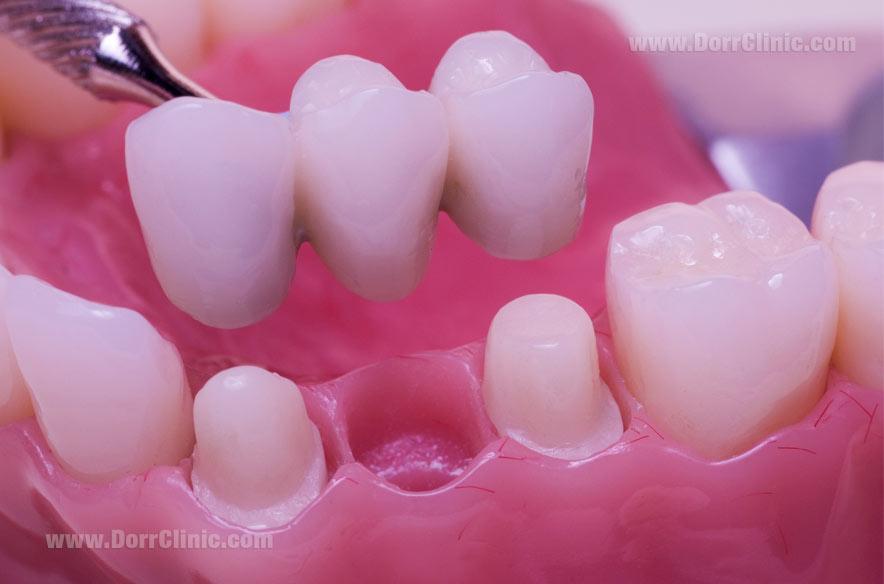 پر کردن جای خای دندان با بریج
