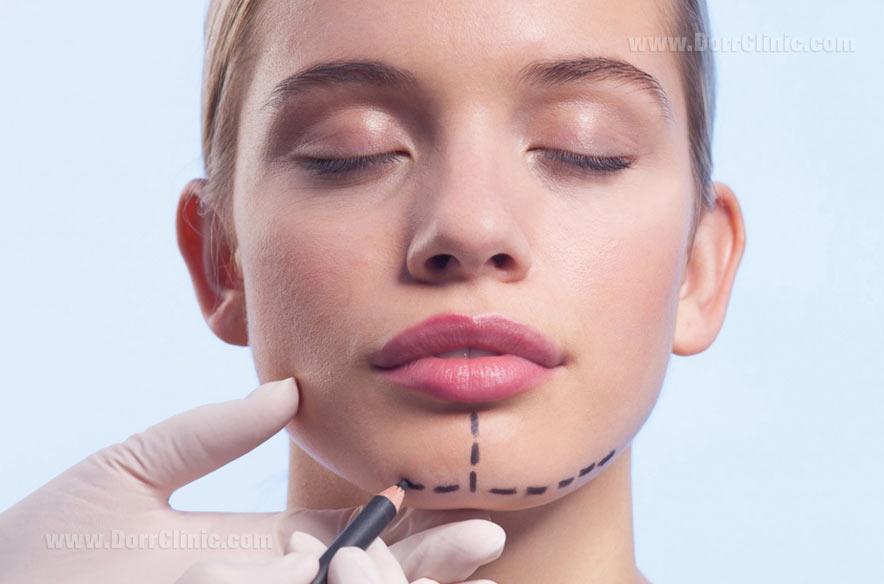تغییرات چهره بعد از جراحی فک