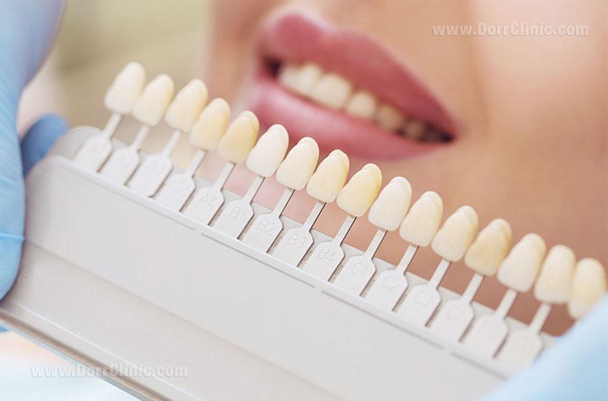 لمینت دندان در رنگ های مختلف