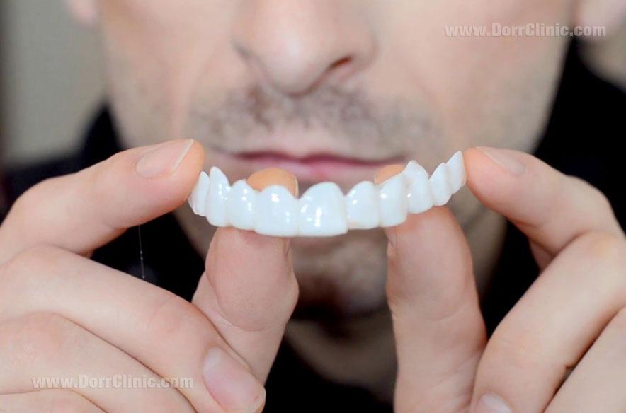 لمینت دندان در یک جلسه