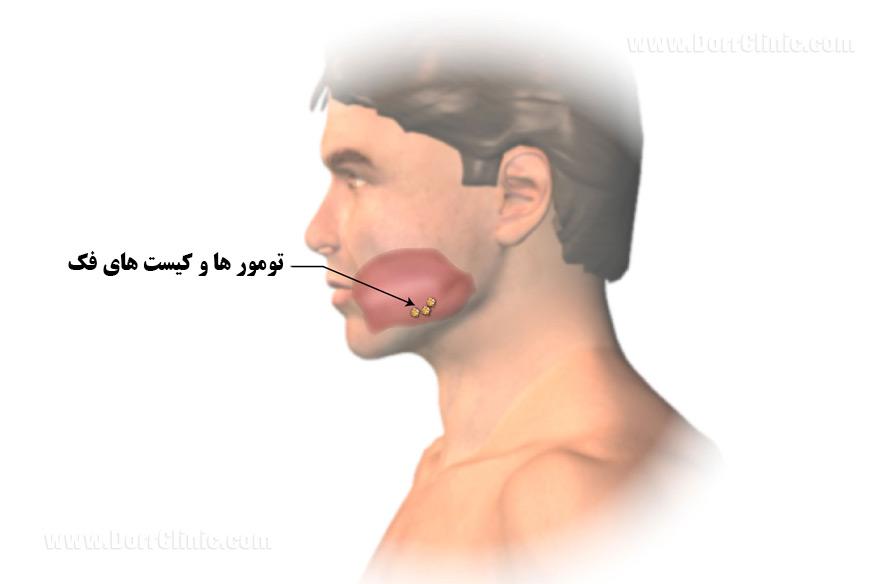 تومور و کیست فک