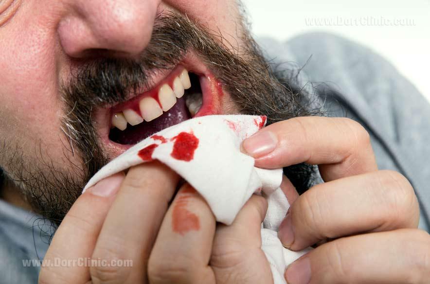 علائم پیوره دندان