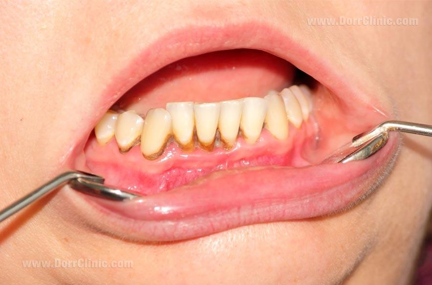 پیوره دندان