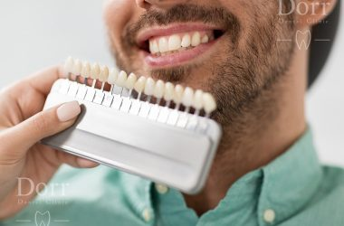 Are dental veneers worth it