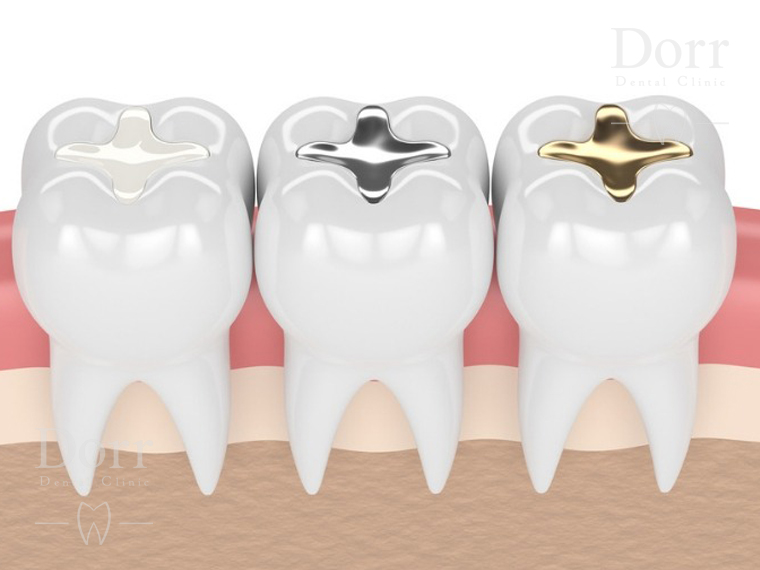 Dental inlays