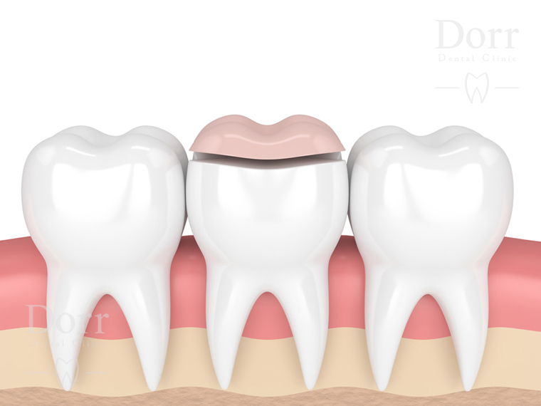 Dental onlays
