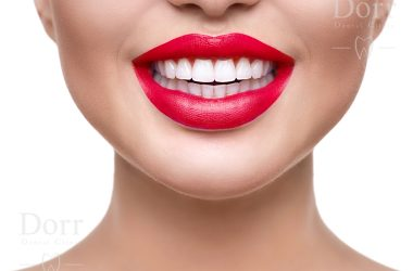 right candidate for dental veneers