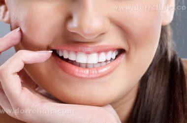 مراقبت از لمینت دندان ها
