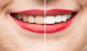 فواید لمنیت دندان