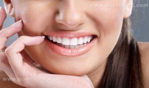 استفاده از روکش های دندان