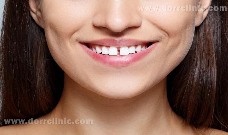 فاصله بین دندان