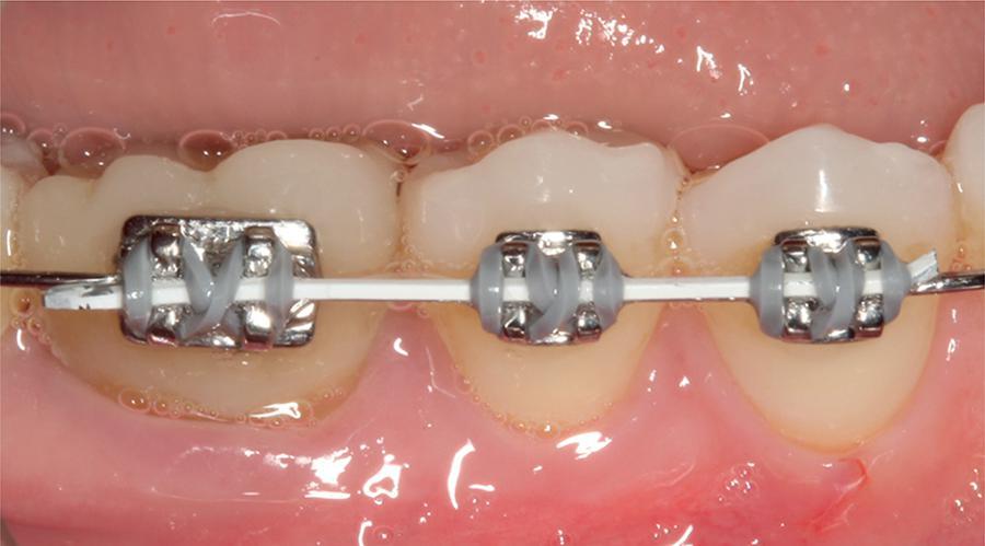 سیم ارتودنسی دندان